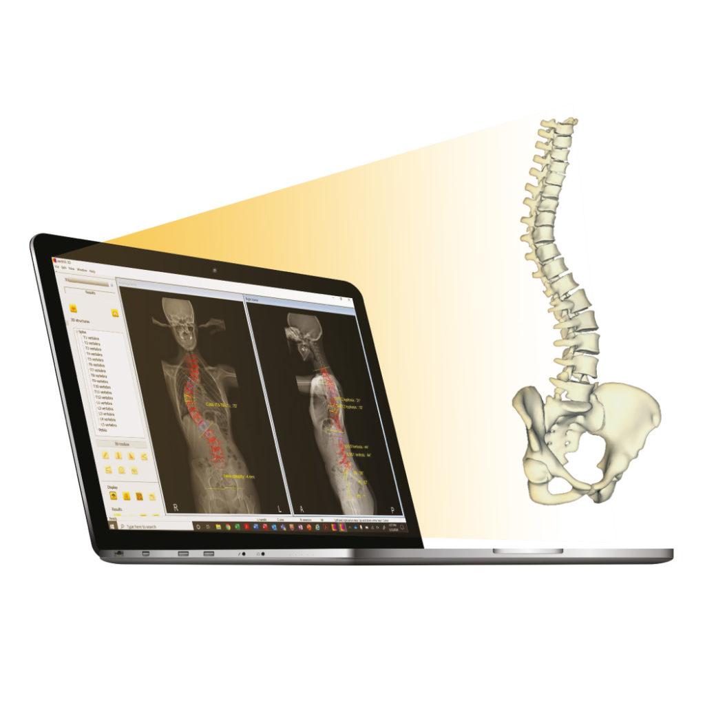 Spine 3D