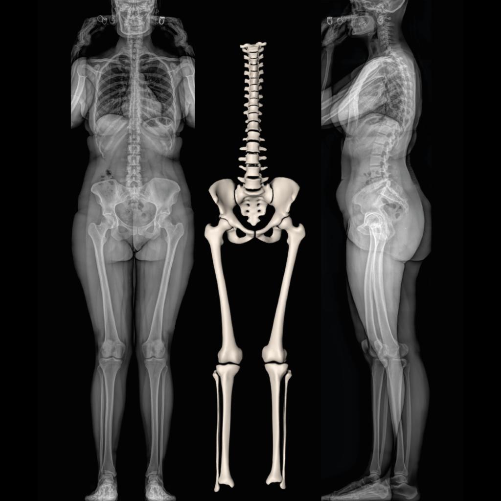 Radiographie corps entier et 3D