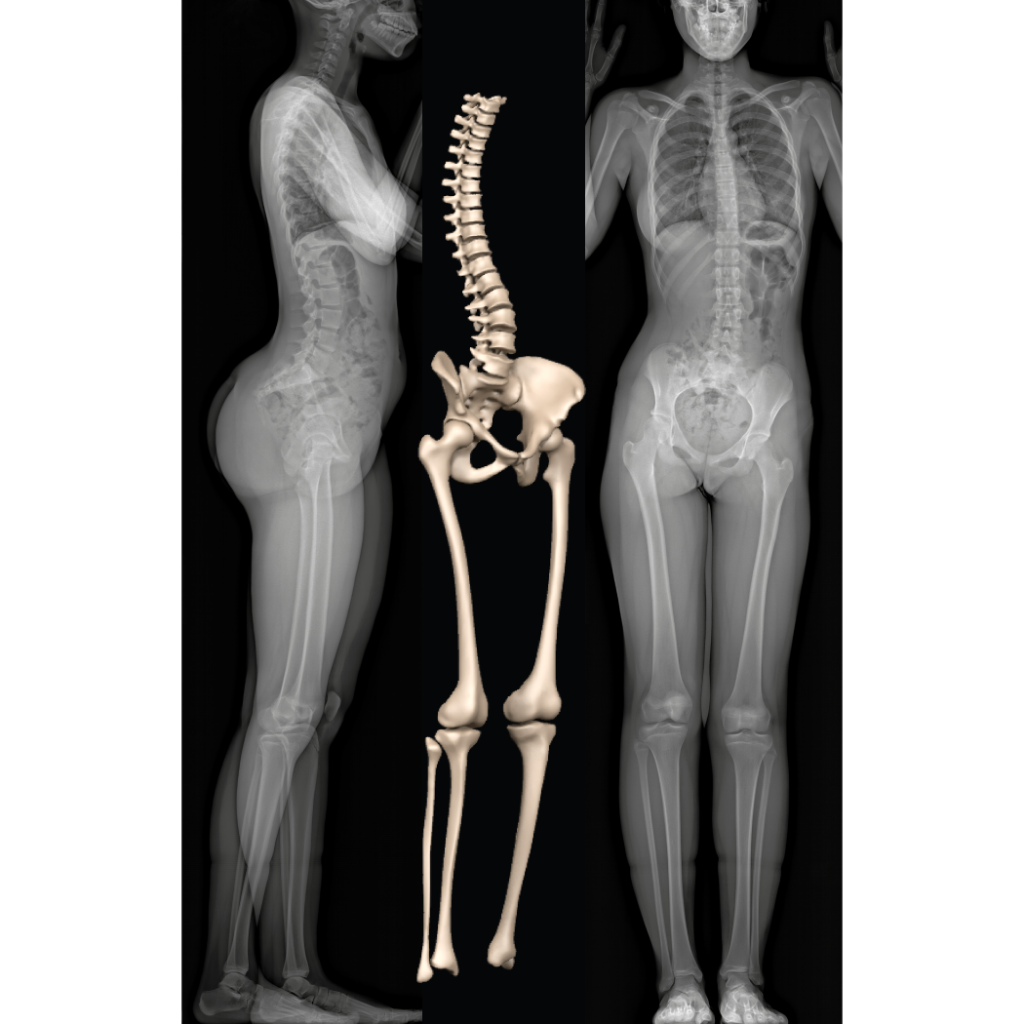 EOS Full Body Xray 3D