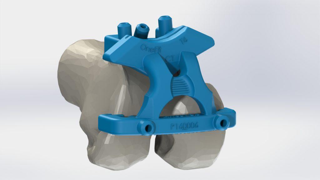 Guide femur scanner