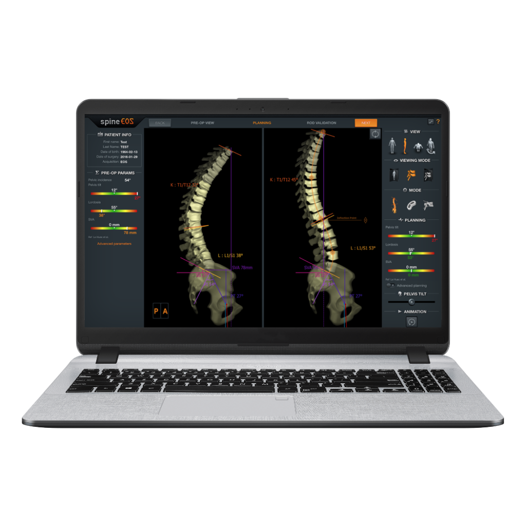 spinEOS Surgical Planning