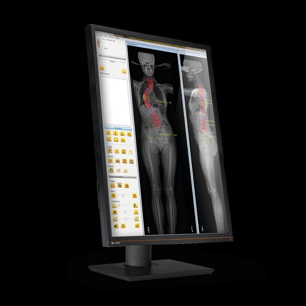 EOS 3D-Modellierung